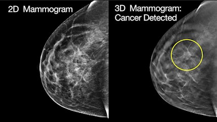 Early Detection Is Key For Breast Cancer Women Urged To Get